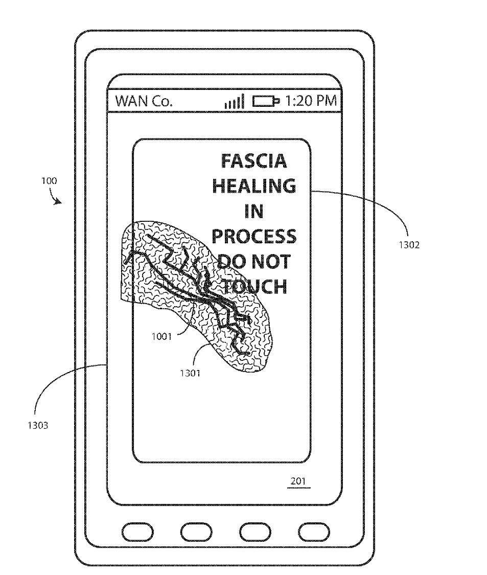 Un écran de smartphone auto-réparable