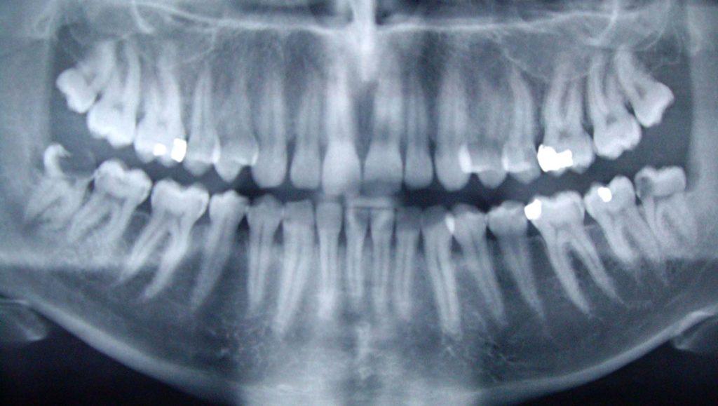 radio-dent-dentition-machoire