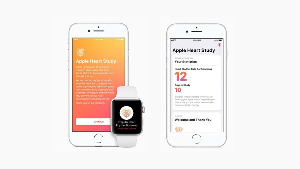 Troubles cardiaques : l'Apple Watch a officiellement aidé la médecine