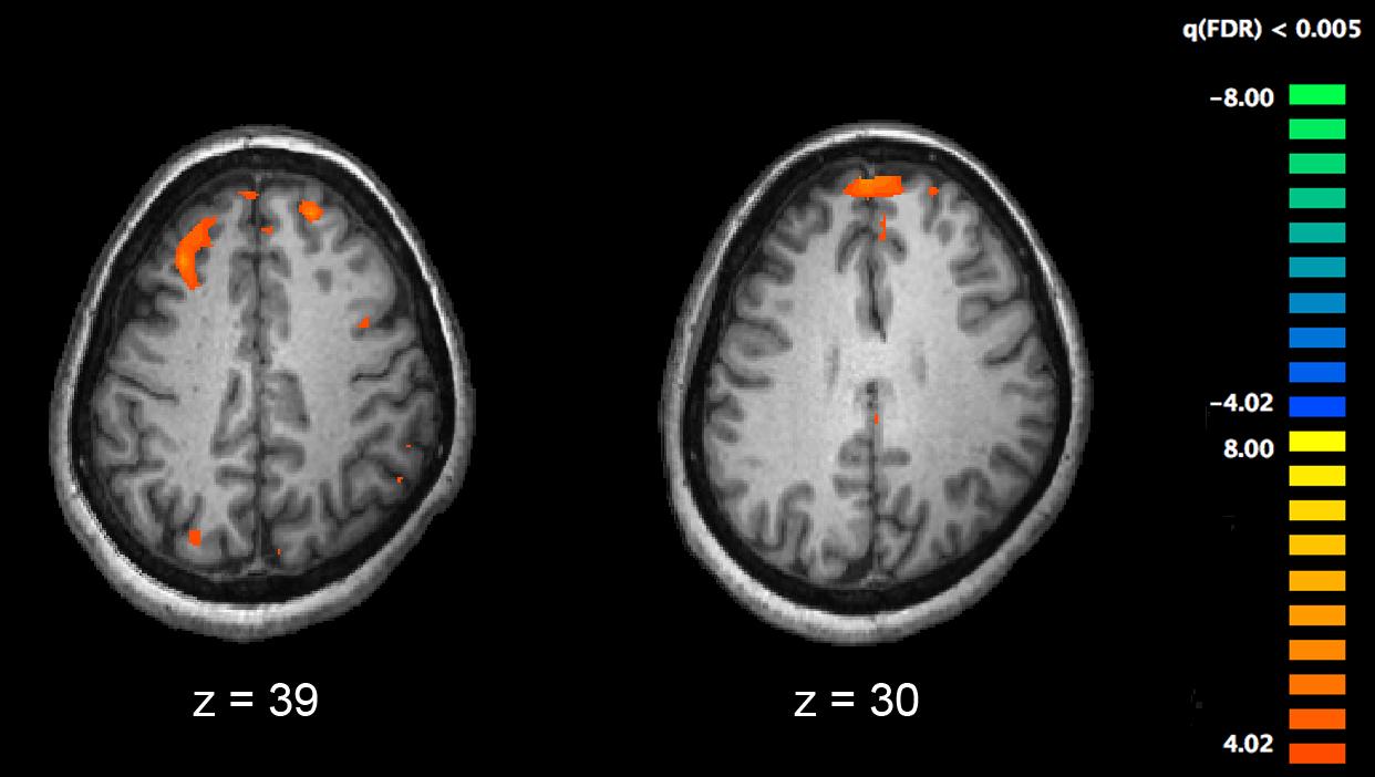 Ces chercheurs ont réussi à annuler un symptôme de la schizophrénie jusqu'ici intraitable